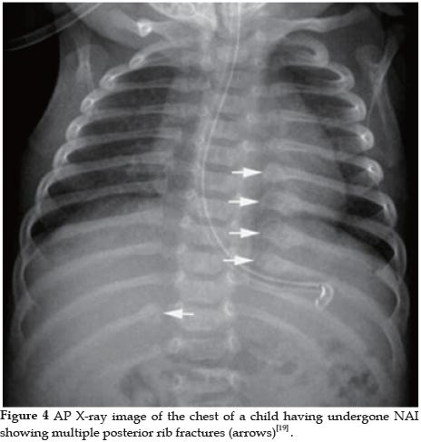 Dating rib fractures in infants