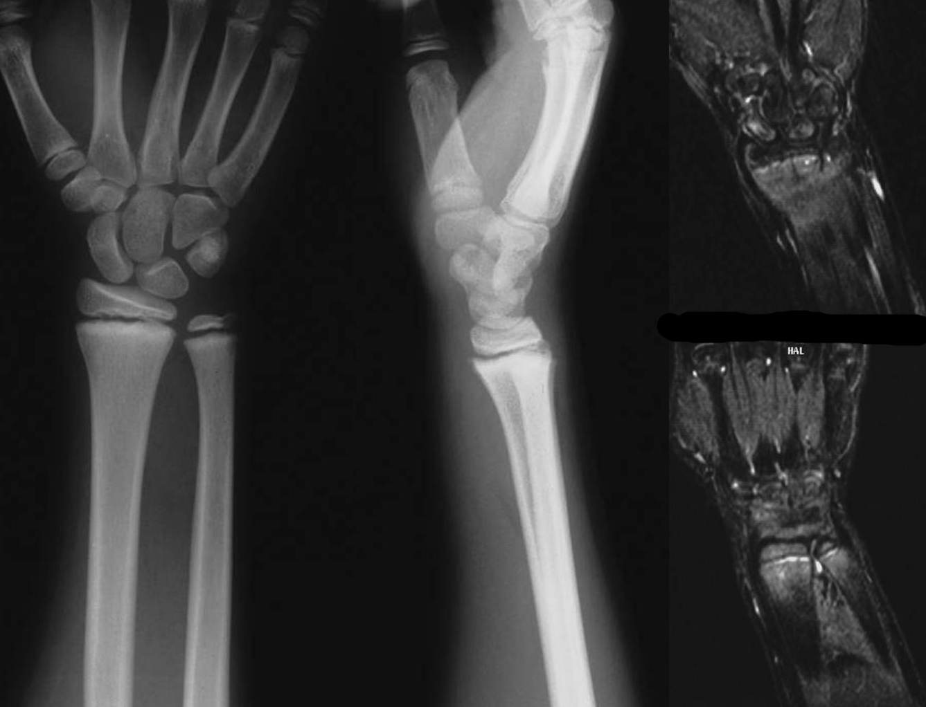 Occult Pediatric Scaphoid Injuries Sferopoulos International