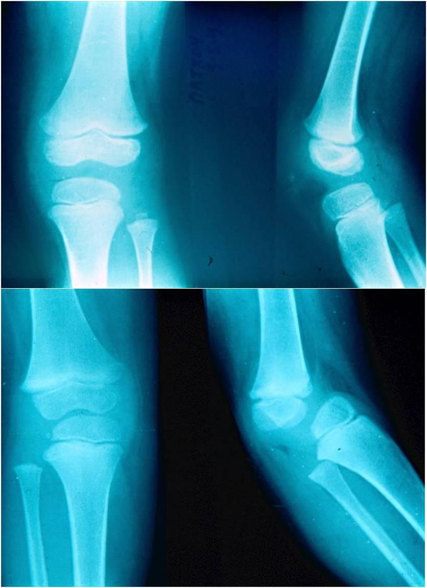 Congenital Aplasia of the Patella   Sferopoulos