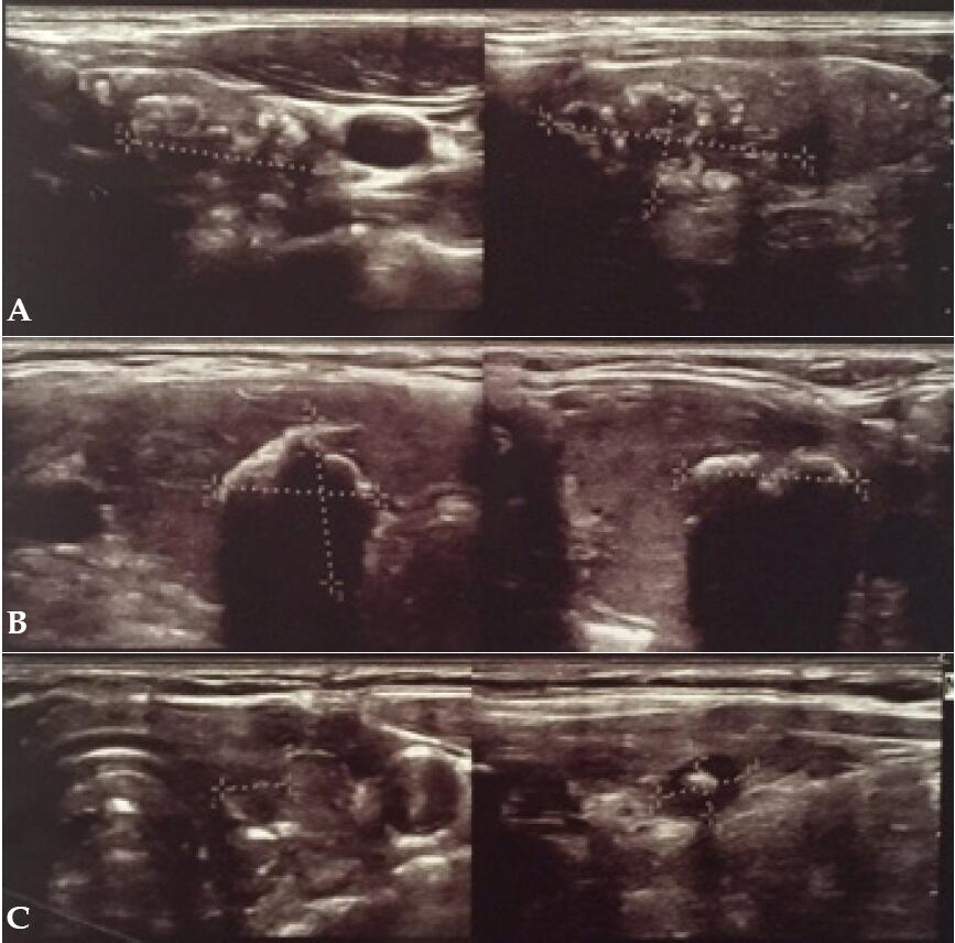 Accuracy Of Ultrasonic Thyroid Nodules Calcifications In