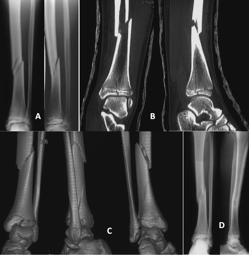 Concomitant Tibia Shaft and Distal Triplane Fractures   SFEROPOULOS