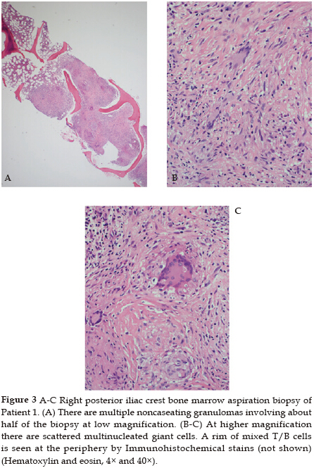 Painful Small Fiber Neuropathy in Sarcoidosis: A Report of