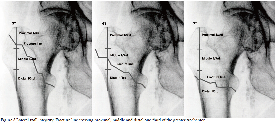 Trochanteric Femoral Fracture Classification: Relevance of the ...