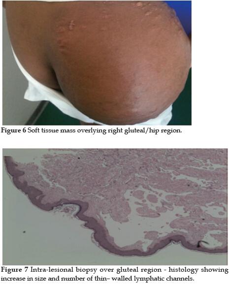 Lymphangiomatosis With Extensive Skeletal Involvement
