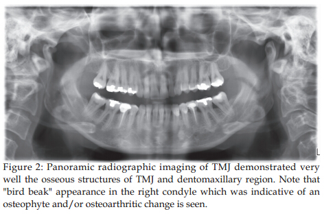 An Overall Look For Temporomandibular Joint Pathologies And