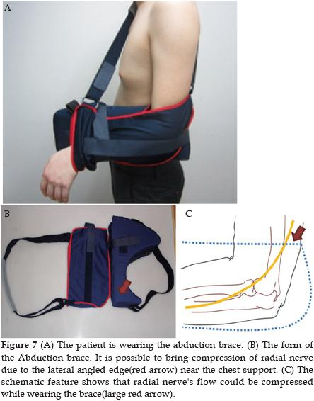 In Our Conclusions As Follows 1 Round The Lateral Edge Of Brace And Use Wide Soft Materials 2 Prevent Tightening Pocket Surrounding