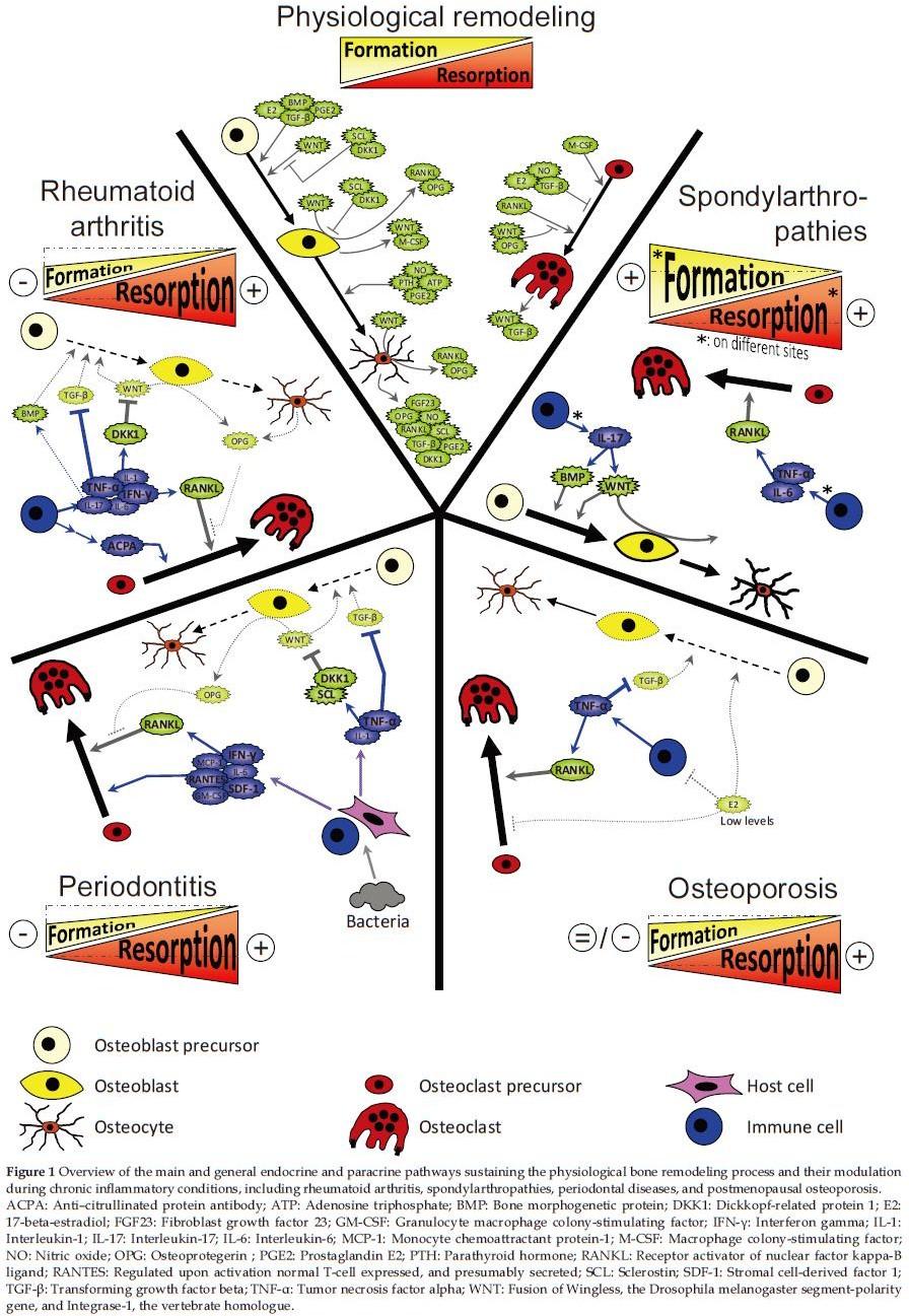 Inflammation and Bone Remodeling Pathologies | Gosset | International ...