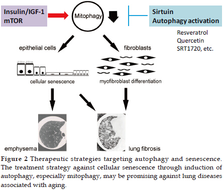 Autophagy and Cellular Senescence in Lung Diseases | Kuwano