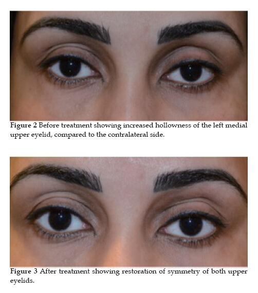 Upper Eyelid Augmentation using Hyaluronic Acid Filler
