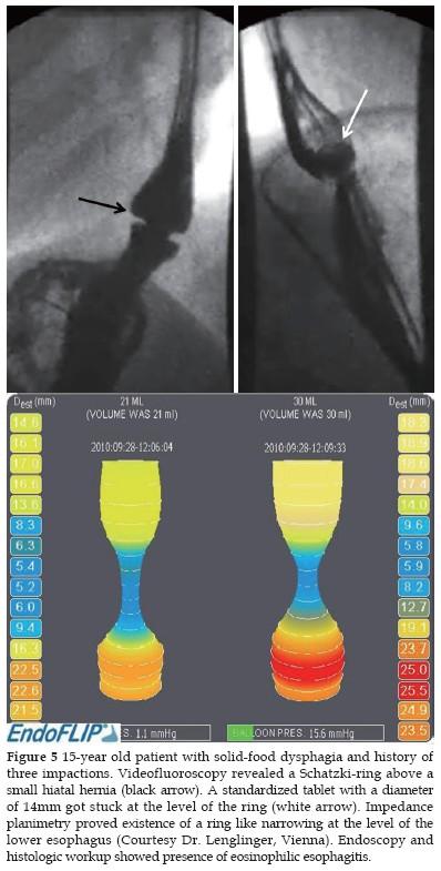 Barium swallow study contraindications