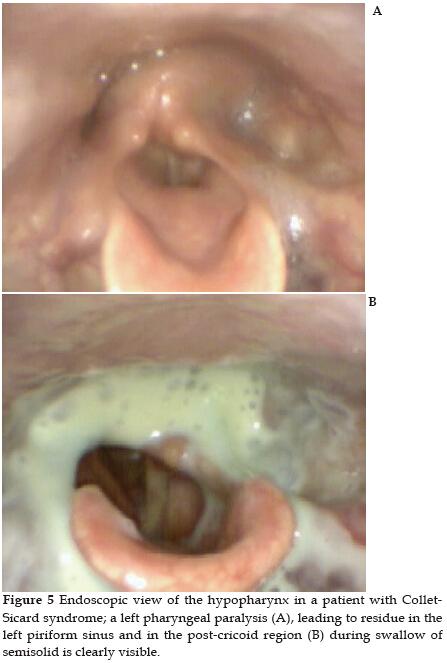 gége papillomatosis és dysphagia